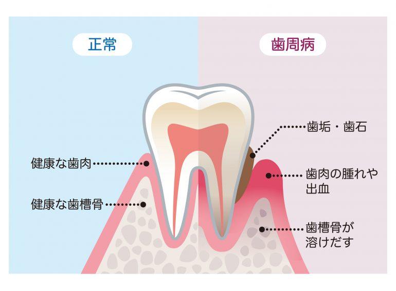 歯周病の主な原因
