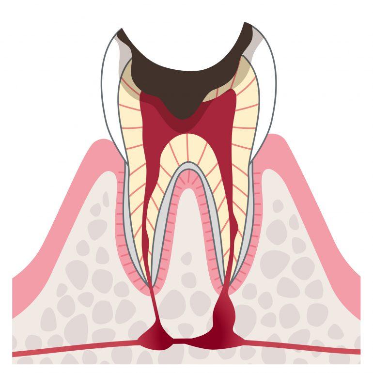 ステージ4 重度むし歯(歯髄炎・根尖性歯周炎)