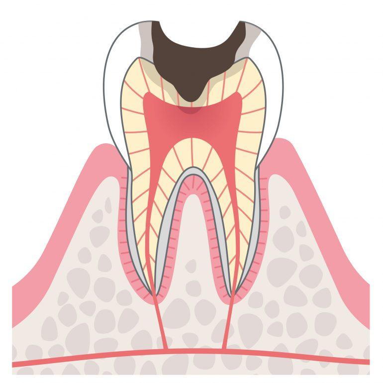 ステージ3 中等度むし歯(象牙質う蝕)