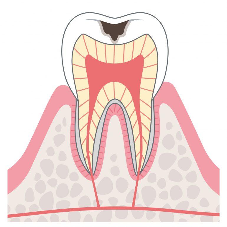 ステージ2 初期むし歯(エナメル質う蝕)