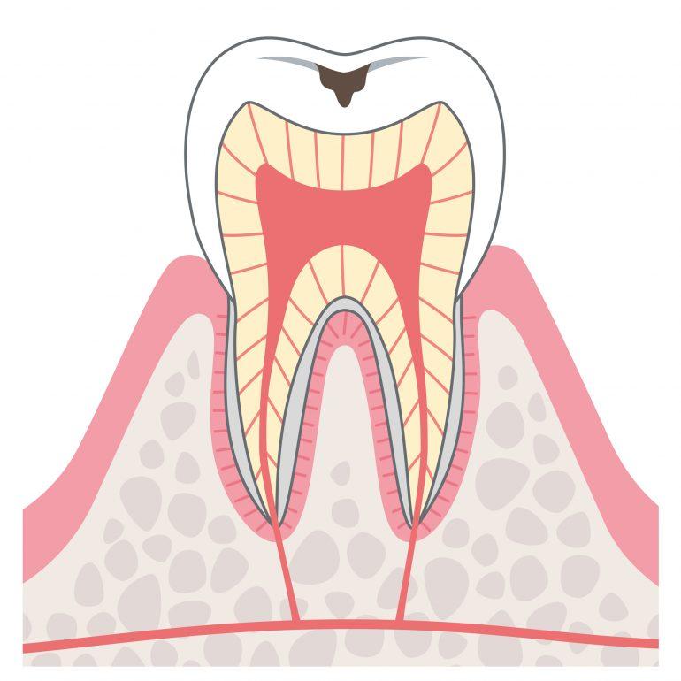ステージ1 初期むし歯(脱灰)