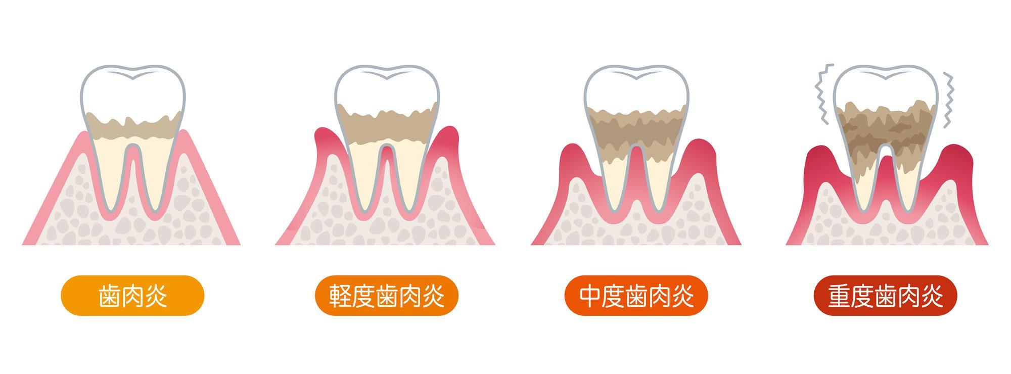 歯周病の進行度と症状